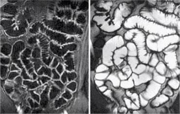 뇌 자기공명소장조영술 사진